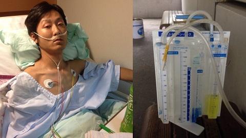 気胸手術後とチェスト・ドレーン・バック(胸腔排液用装置)